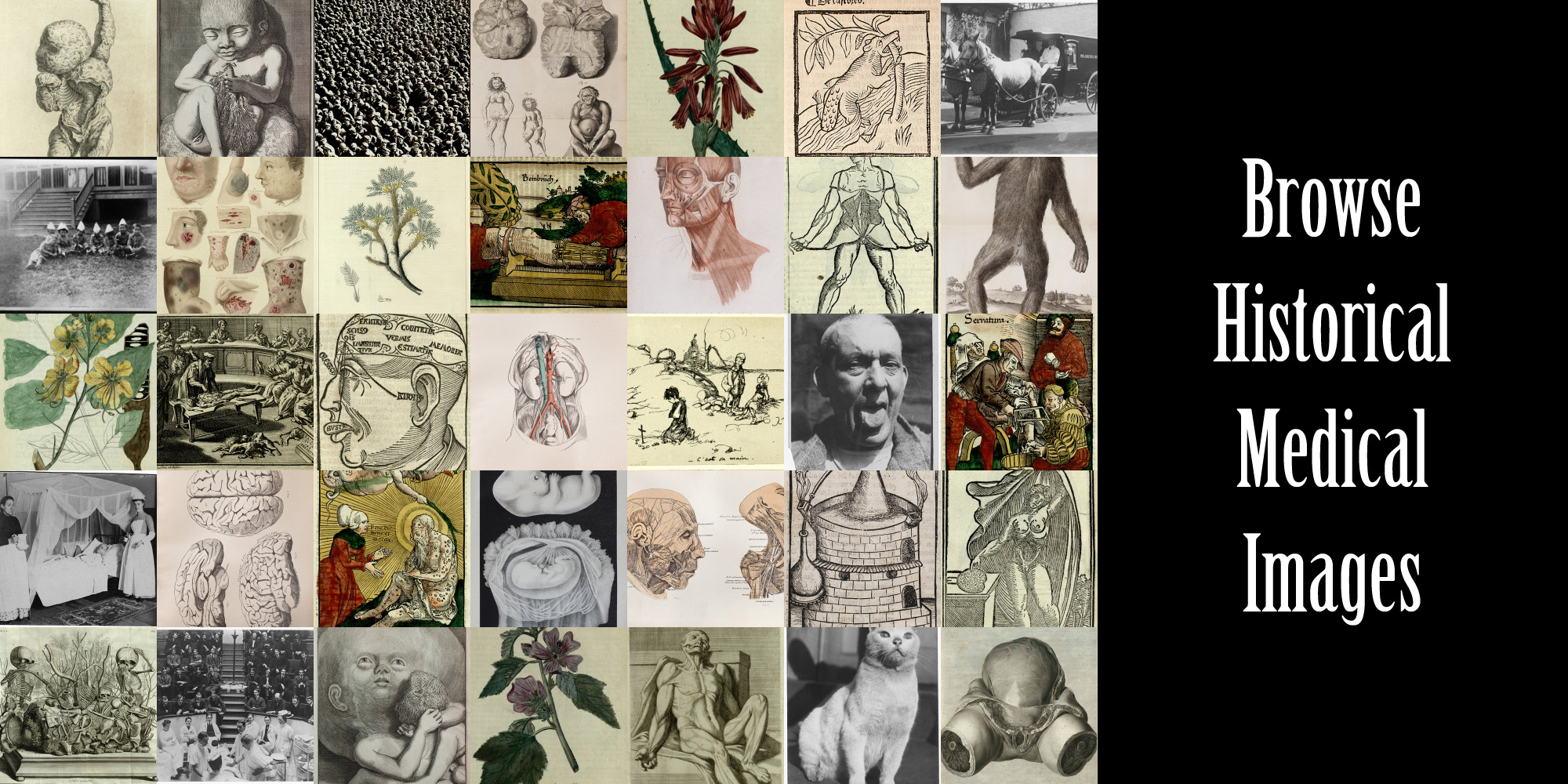 Browse Images from the History of Medicine