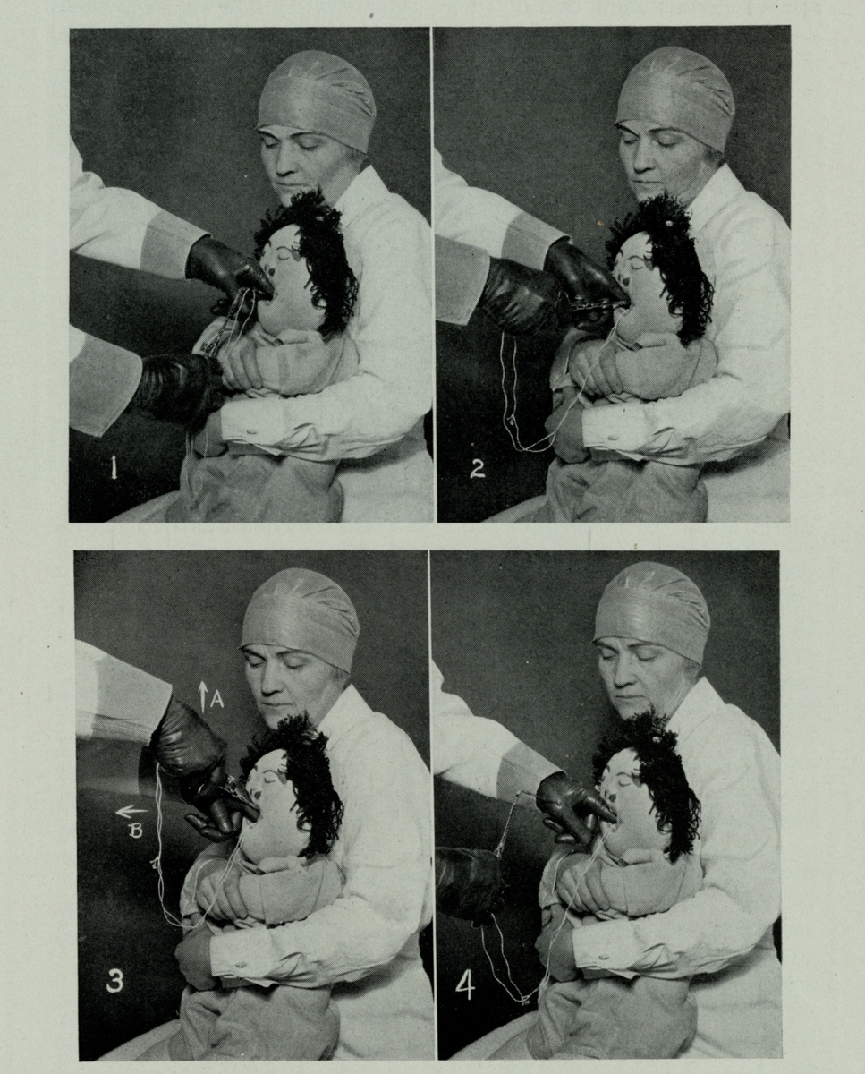 Chevalier Jackson demonstrating Michelle the Choking Doll