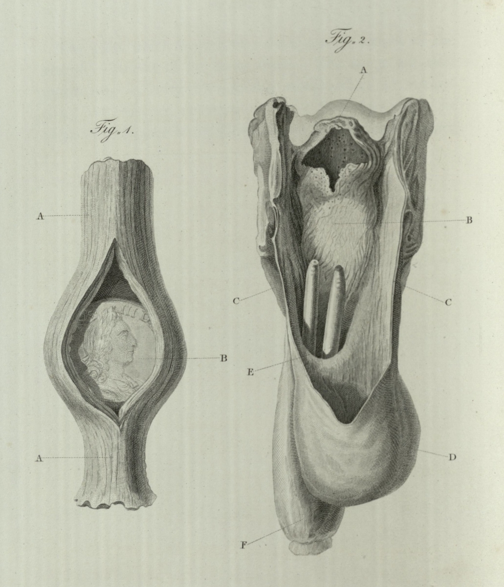 Extraneous bodies in the pharynx and esophagus