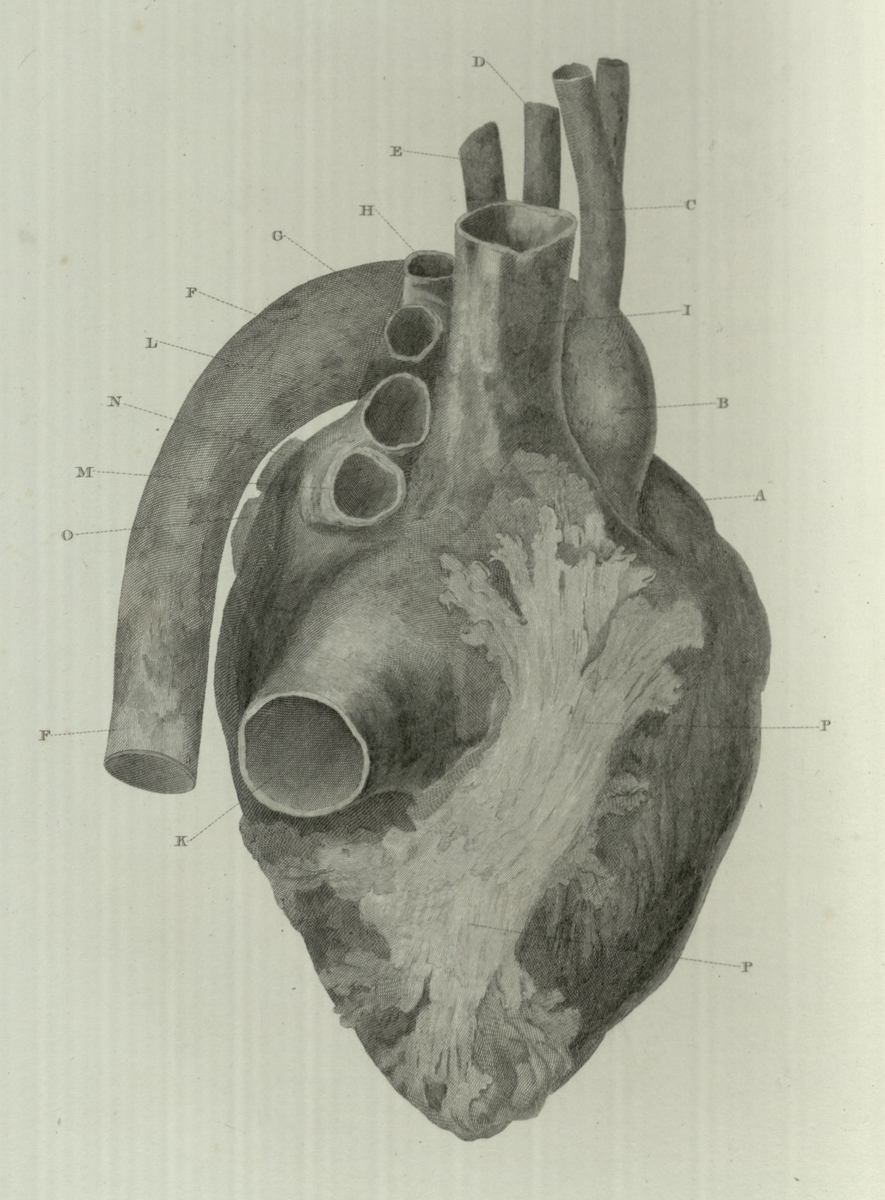 Large ossification of upon the surface of the heart