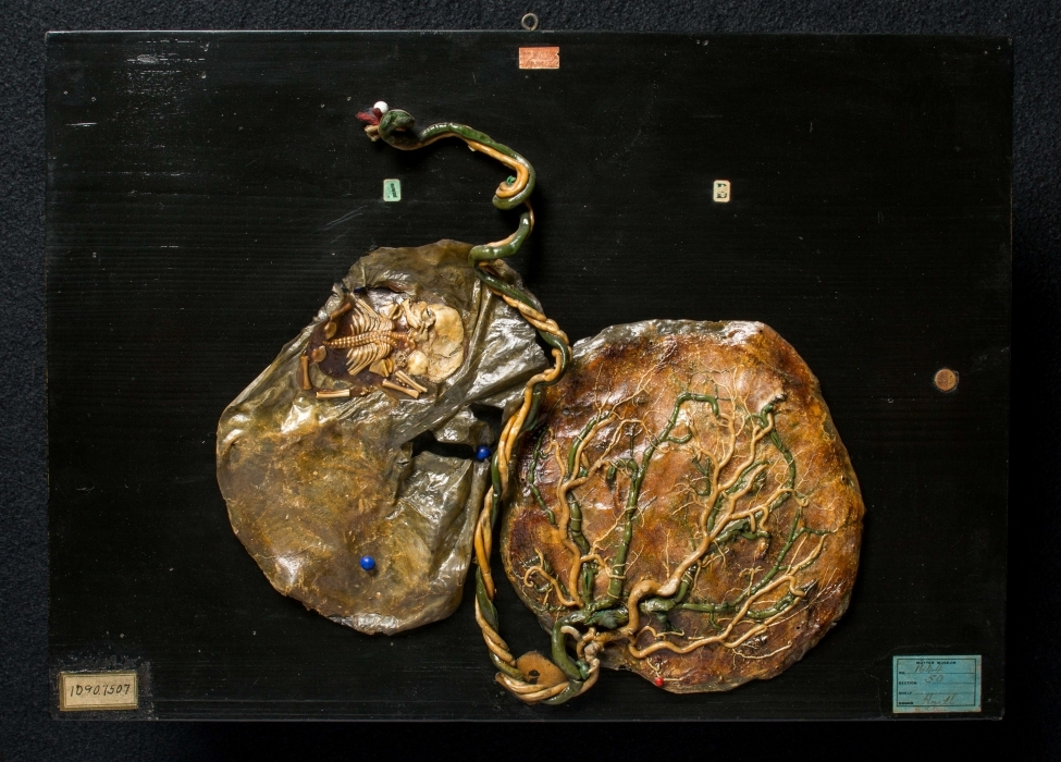 Placental Corrosion Specimen with Twin