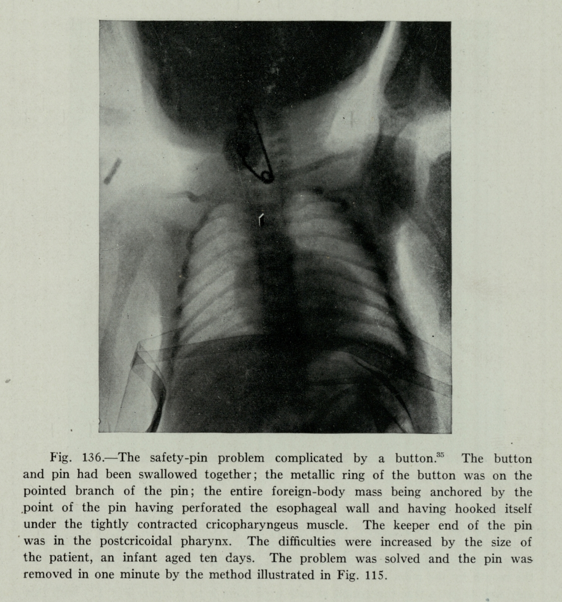 X-ray showing safety pin and button in a 10-day-old infant's airway, 1934