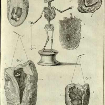 Fetal skeleton with embryo and placenta