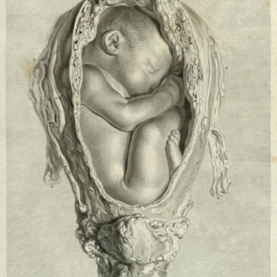 From a third subject, in the ninth month of pregnancy …