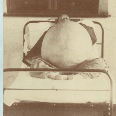 Woman with ovarian cyst