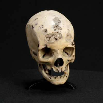 Skull with Syphilitic Necrosis