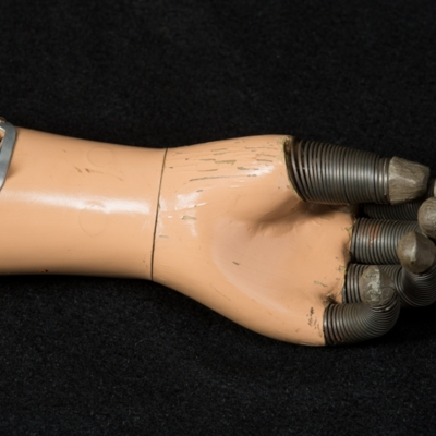 Prosthetic Arm with Springs