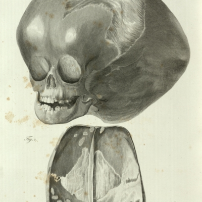 The cranium in a child when affected with hydrocephalus of a long standing