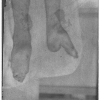 Chinese woman's feet showing the result of foot binding