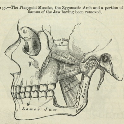 The pterygoid muscles, the zygomatic arch and a portion of the ramus of the jaw having been removed