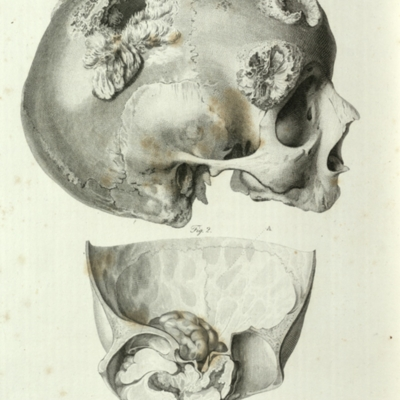 Two diseases of the cranium