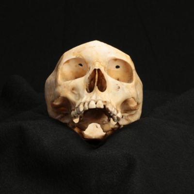 Skull with Evidence of Transorbital Lobotomy