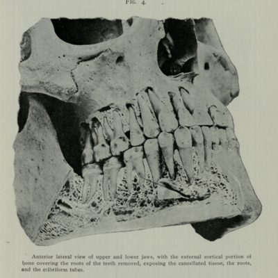 """An almost ideal articulation of the permanent teeth"""