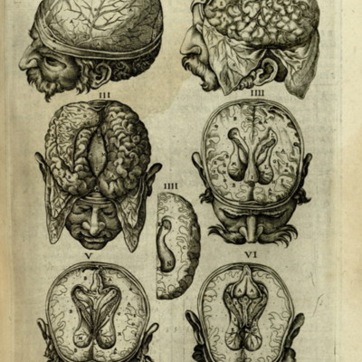 Anatomical diagram of the brain