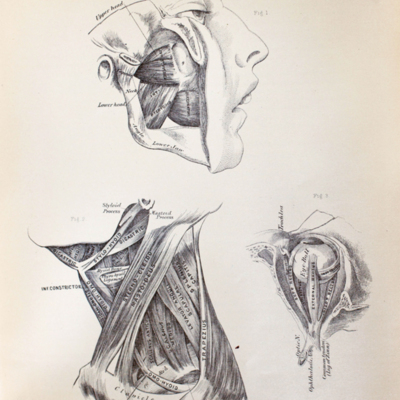Anatomical diagram of muscles of mastication, muscles around the eye, and muscles of the neck
