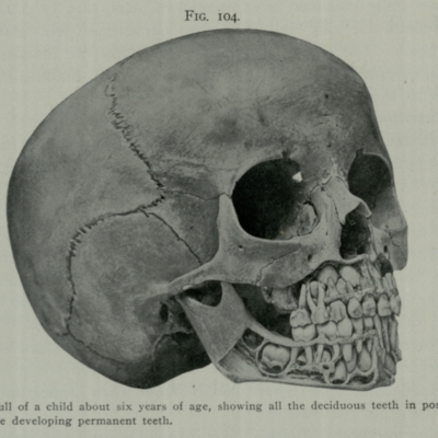 Child's skull, showing deciduous and permanent teeth
