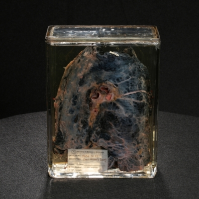 Coal Miner's Lung
