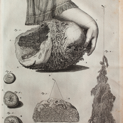 Bladder with arm, liver with dropsy, and horse calculi