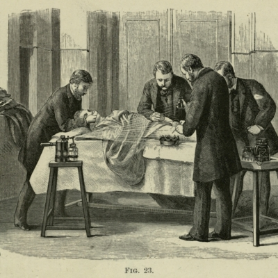 Lister Carbolic Acid Sprayer in use during surgery, 1882