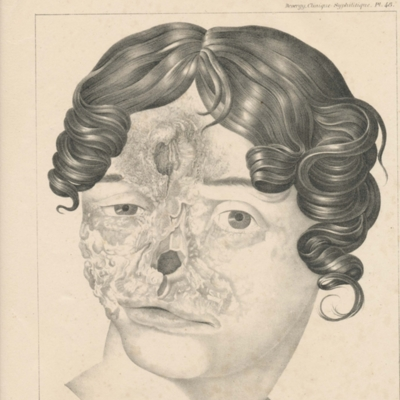 Facial and cranial damage from syphilis