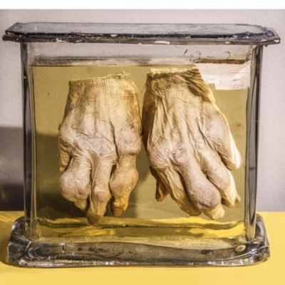 Hands with Gout