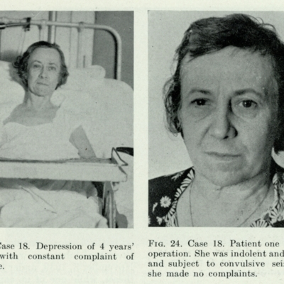 Lobotomy patient, post-operation and one year later