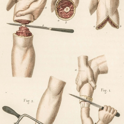 Tools and procedures for amputation of the arm