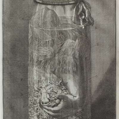 Human arm preserved in jar