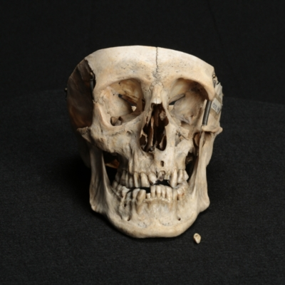 Skull with Tooth Abscesses