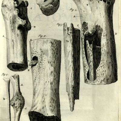 Sections of the bones of the leg and arm showing decay