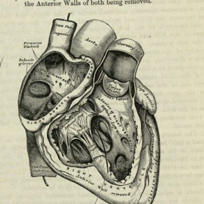 The right auricle and ventricle laid open, the anterior walls of both being removed
