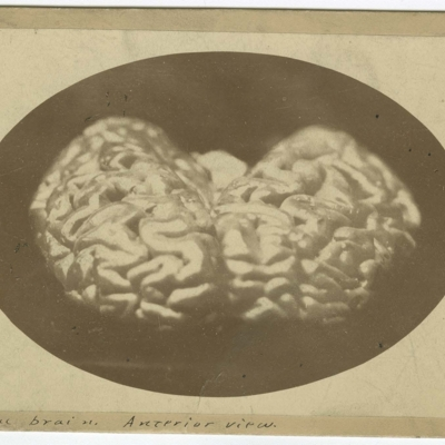 Left lateral view of brain of Charles J. Guiteau