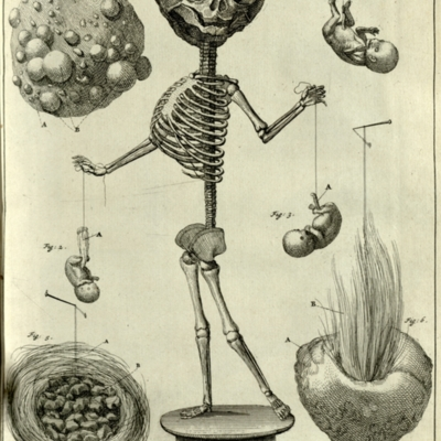 Fetal skeleton with embryo, fetus, placenta and atheroma