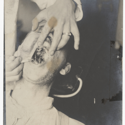 Case of syphilitic necrosis of inter maxillary bone