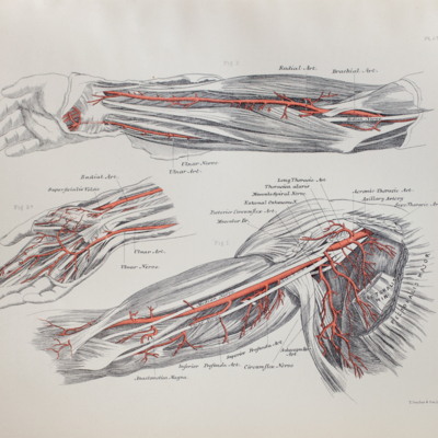 Anatomical diagram of the axillary, brachial, radial, and ulnar arteries